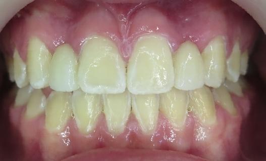 After Orthodontics & Bridges
