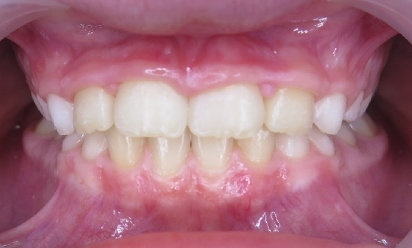 single tooth crossbite after