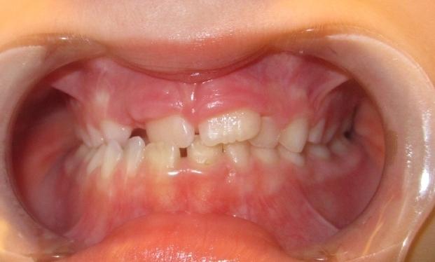 single tooth crossbite before